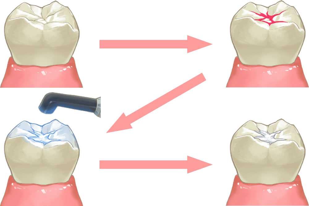シーラントでの虫歯予防