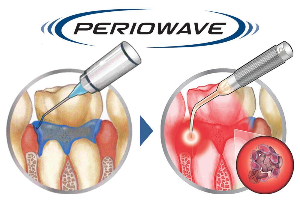 PDT歯周病治療