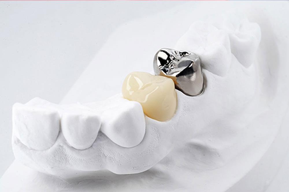 銀歯の使用を避ける