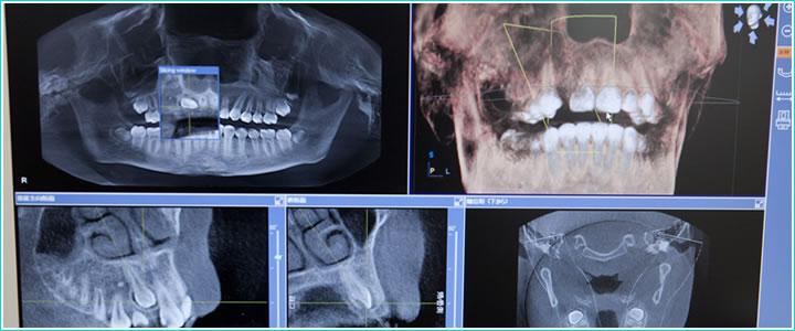CTを活用しての診断