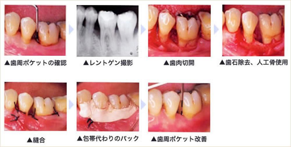 重傷度の高い歯周病