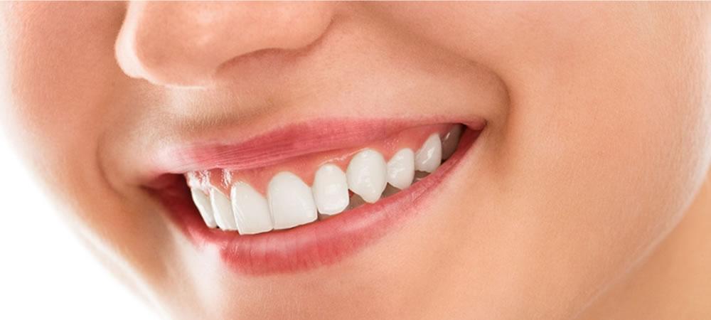 「歯 ホワイトニング」の画像検索結果